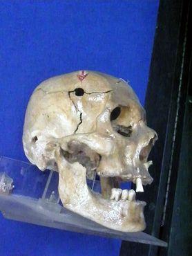 Анатомические экспонаты