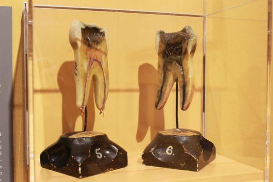 Модели зубов в Музее истории медицины в Гамбурге