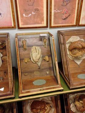 Восковая анатомия в «Ла-Спекола»