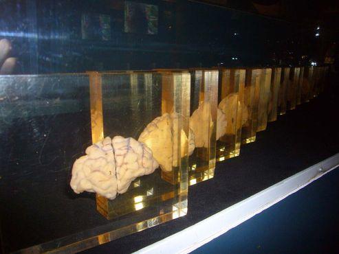 Срезы человеческого мозга (прежнее место)