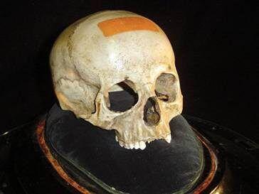 Предположительно, череп Моцарта