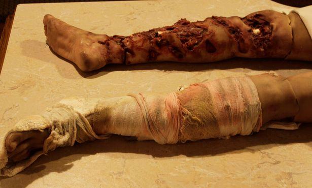 Восковая модель сломанной ноги