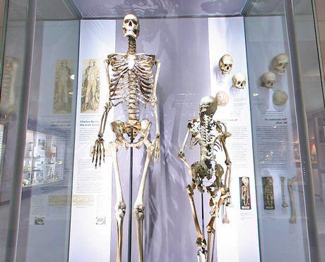 Скелет «ирландского гиганта» Чарльза Бирна, рост—2,31 м