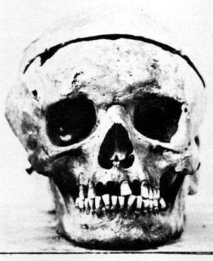 Фотография черепа Бетховена, сделанная в 1863 году во время эксгумации