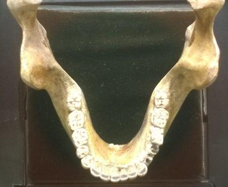 Мауэрская челюсть